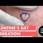 A Dr. Pimple Popper Valentine's Day Celebration!