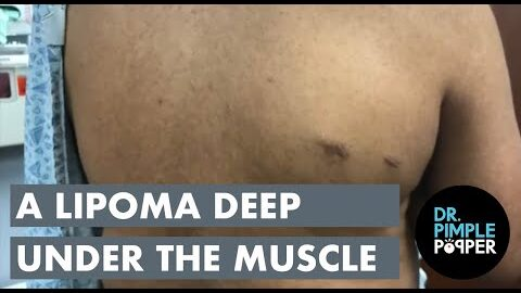A Lipoma Deep Under The Muscle