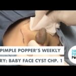 Dr. Pimple Popper's Weekly Story: Baby Face Cyst, Ch 1!