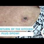 The Return of the Kitchen Sink Plug Dilated Pore of Winer!