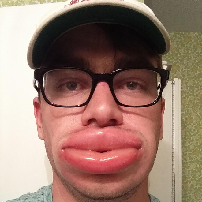Lips after a bee sting.