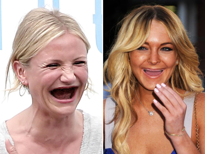 Meth: not even once!